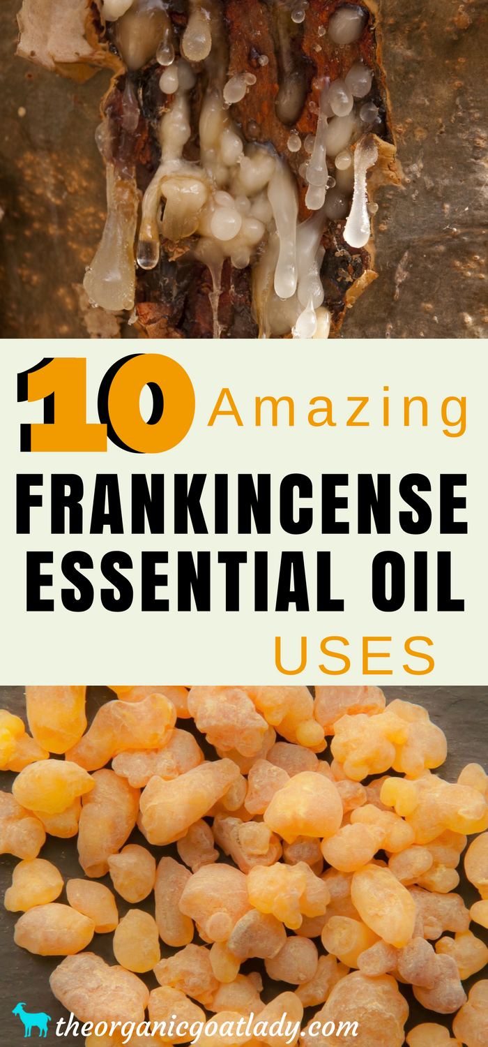 10 Amazing Frankincense Essential Oil Uses!